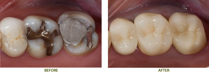 Dental Crowns Back Teeth