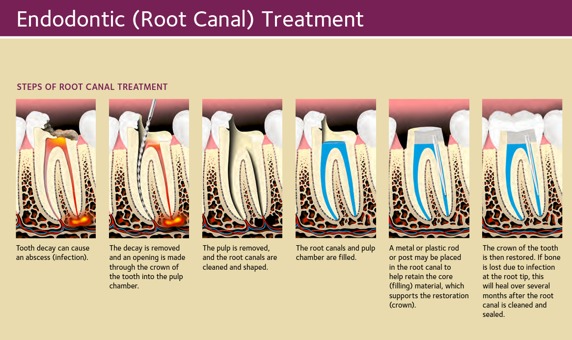 Root Canal Picture